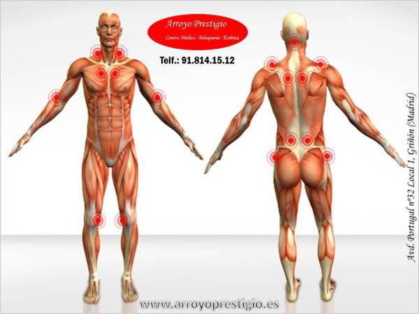 puntos-dolor-fibromialgia